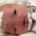 Meet Eli, A Baby Born Without A Nose