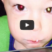 See How This Mom Saved Her Little Boys Life….. With A Camera Phone!