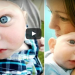 This Baby Was Born Different From Others, His Rare Condition Will Shock You!