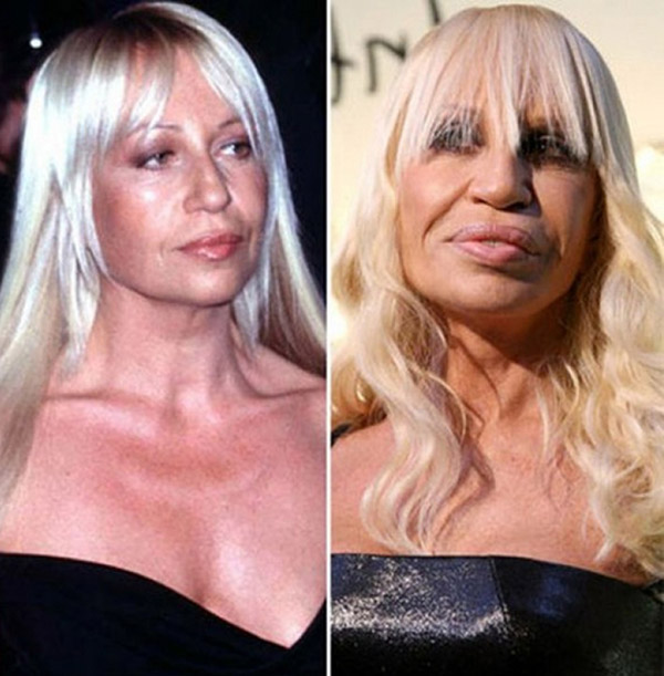 5-plastic-surgery-fail