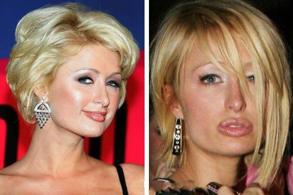 17 Of The Worst Plastic Surgery Fails Do They See What