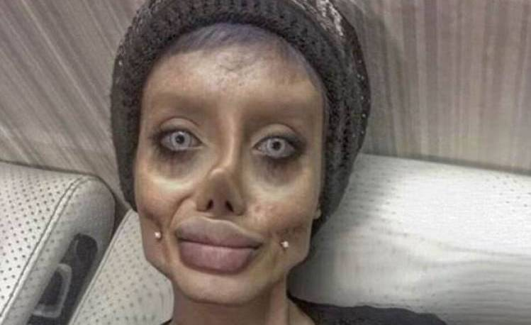 Angelina Jolie In Iran >> Iranian Girl Undergoes 50 Surgeries To Look Like Angelina Jolie