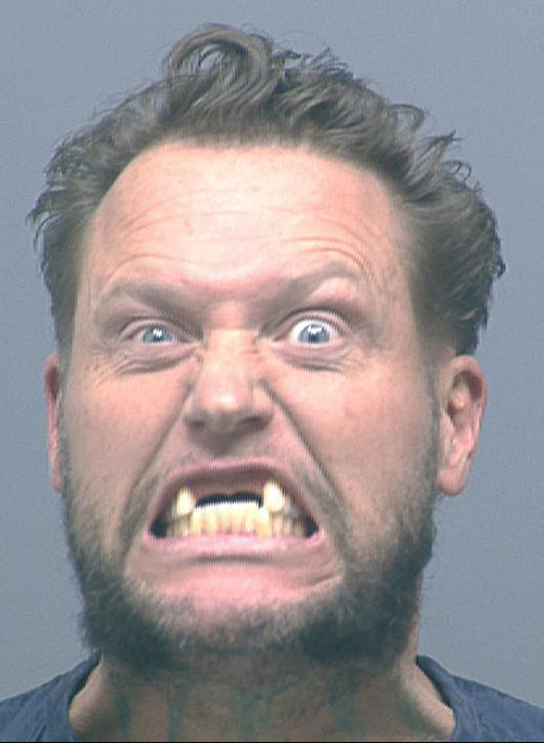 Funny-Mug-Shots-Bad-Teeth