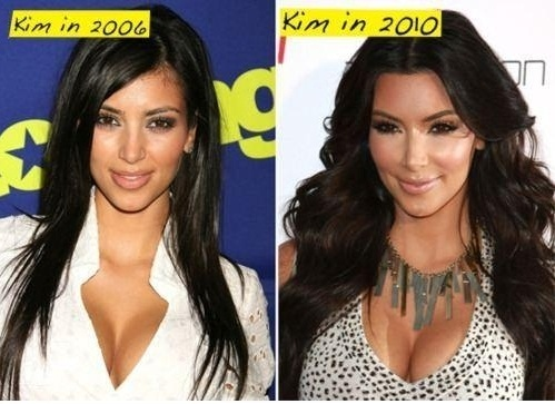 Kim-Kardashian-Plastic-Surgery-Fail-or-WIN