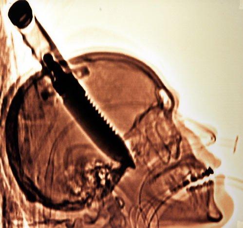 Shocking-X-rays-220911-09_044355