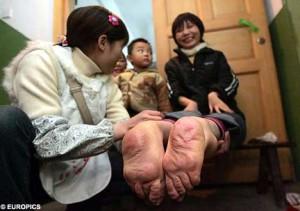 woman born with backwards feet