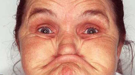 Woman-Swallows-Her-Nose-Ugly-Female