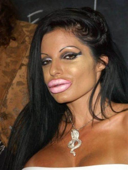 bad-plastic-surgery-7
