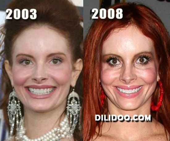 en_ugly_plastic_surgery_40