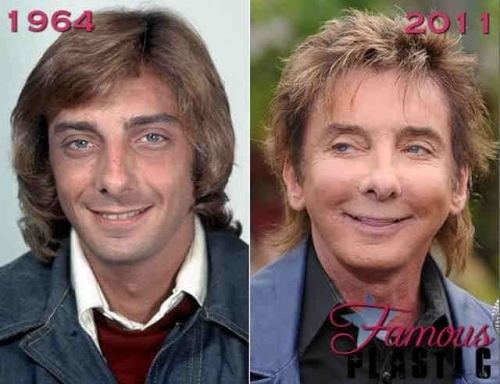 plastic-surgery-fails-4