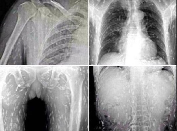 x-ray of Chinese Man's Body Riddled With Tapeworms